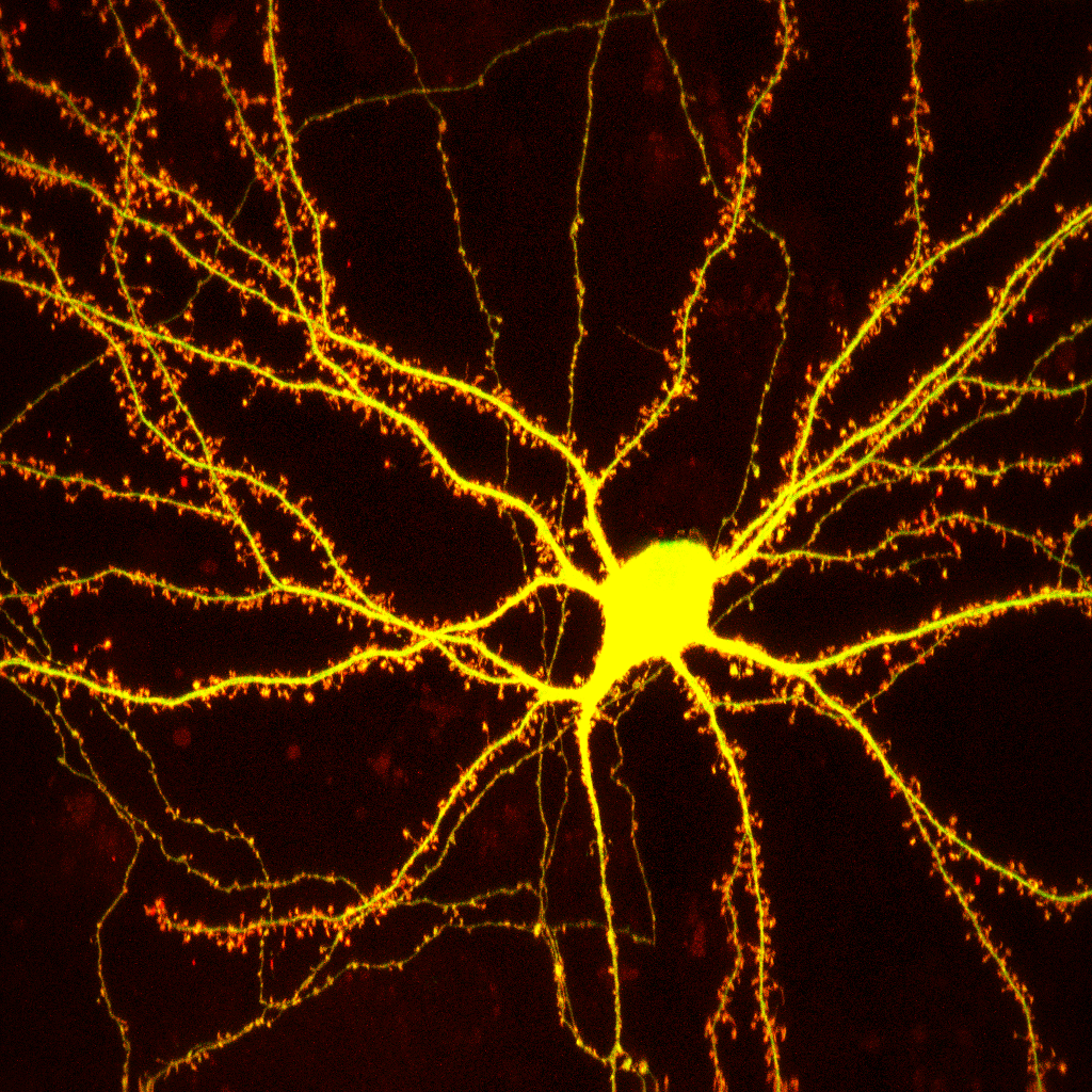 Cultured Hippocampal Neuron
